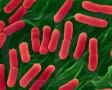 Archaebacteria dan Eubacteria (Klasifikasi Monera)